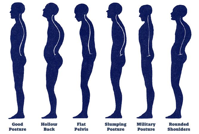 How to fix posture